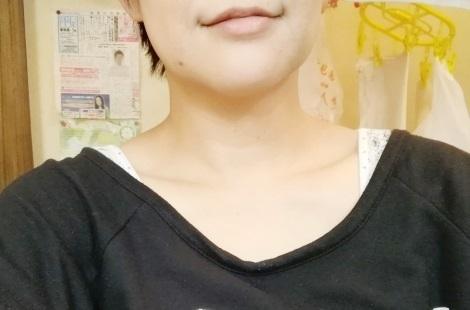 20171123ほくろ.jpg
